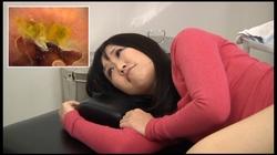 【FetishJapan】肛門科腸内映像 アナル診察 #004