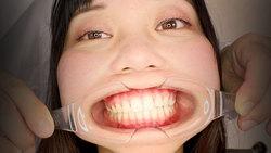 ♦ ️ [Dental fetish 18] ♦ ️ New oral observation ⭐️ Karin-chan ⭐️ [Full version] by Oral hermit (Dr. X)‼ ️