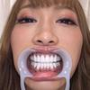 [Tooth fetish] I observed AIKA's teeth!