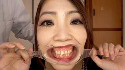 ♦ ️ [Dental Fetish # 19] ♦ ️ 4K New Intraoral Observation ⭐️ Eria-chan 全 ️ [Full] by oral hermit (Dr. X)!